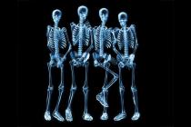 Módulo 7: El Esqueleto